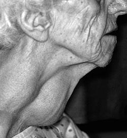 Внешний вид пациента с узлом щитовидной железы