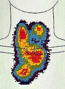 Сцинтиграфия щитовидной железы при многоузловом токсическом зобе